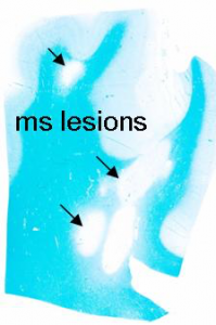 ms lesions