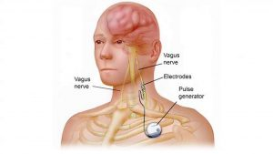 Pacemaker epilepsy - Lee Memorial Health System